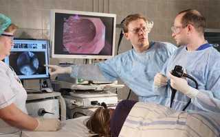 Подготовка к гастроскопии желудка: правила проведения процедуры