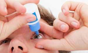 Катаракта глаза – что это такое и как лечат