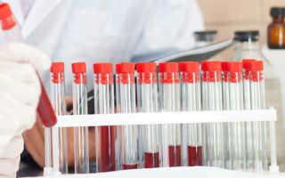 Анализ на иммунный статус – как сдать кровь на исследование и расшифровать иммунограмму