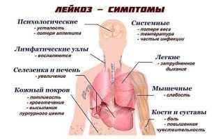 Лейкоз крови – симптомы у взрослых: как проявляется заболевание