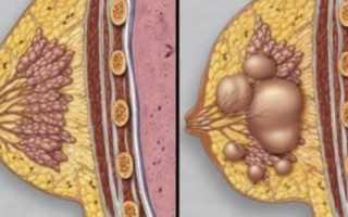 Фиброзно-кистозная мастопатия – симптомы и лечение народными средствами и препаратами, фото