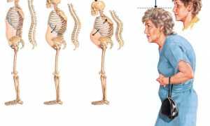 Остеопороз – признаки заболевания, методы диагностики и лечение