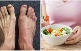 Что можно есть при подагре – диета при обострении заболевания, разрешенные блюда и напитки