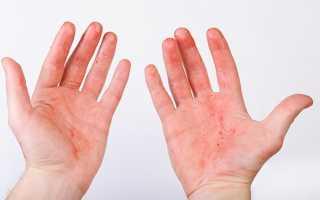 Красные пятна на ладонях у ребенка или взрослого при симптомах болезней