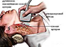 УЗИ сосудов головы и шеи: расшифровка результатов