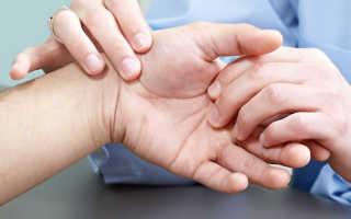 Почему болят суставы пальцев на руках – что делать при симптомах: как снять воспаление и боль, диагностика и профилактика заболевания