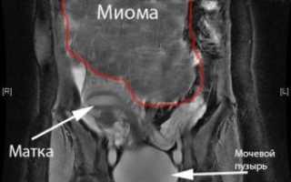 Миома матки – размеры для операции и показания к удалению