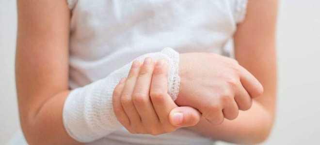 Что делать, если укусила оса – как оказать первую помощь в домашних уловиях и средства от аллергии