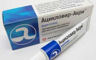 Как лечить герпес в интимной зоне у мужчин и женщин лекарственными препаратами и народными средствами