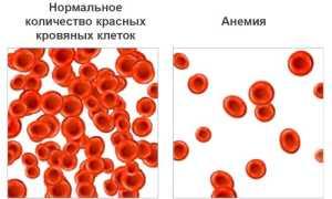 Анемия – что это такое, причины, симптомы и лечение заболевания