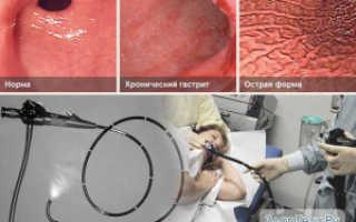 Поверхностный гастрит желудка – симптомы и лечение народными средствами, лекарствами и диетой