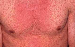 Корь у взрослых – симптомы и лечение, признаки болезни, фото