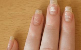 Белые точки на ногтях – что они означают, причины появления у ребенка и взрослого