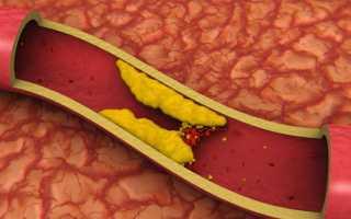 Что делать при повышенном холестерине в крови