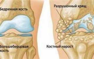 Субхондральный склероз суставных поверхностей: лечение, диагностика заболевания