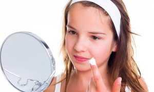 Прыщи на подбородке у женщин: причины появления подкожников и лечение