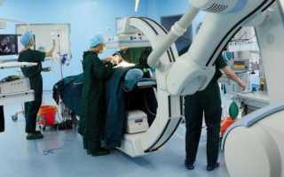 Высокотехнологичная медицинская помощь: исследования и процедуры