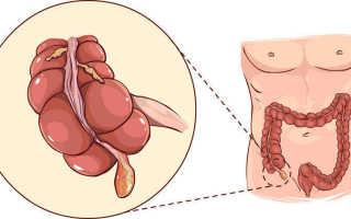 Признаки аппендицита у женщин: как определить первые симптомы