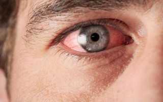 Воспаление глаза – причины и как снять в домашних условиях