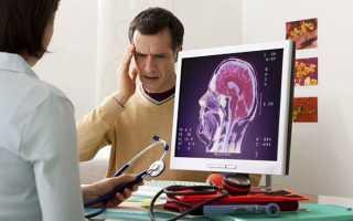 Таблетки от внутричерепного давления для детей и взрослых – перечень, состав и схема лечения