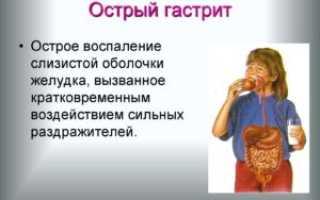 Лечение острого гастрита – что принимать при гастродуодените, таблетки от повышенной кислотности, чем снять приступ