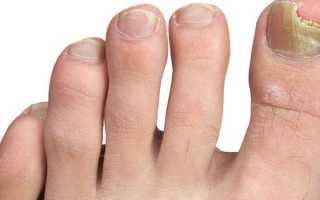 Список лучших кремов от грибка ногтей: как выбрать противогрибковый препарат, цена, советы по применению
