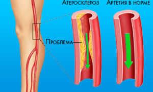 Атеросклероз сосудов нижних конечностей – симптомы и лечение народными средствами и препаратами