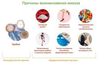 Грибковое поражение кожи – классификация и виды, проявления у ребенка и взрослого, схемы терапии