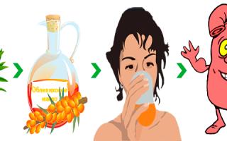 Облепиховое масло при гастрите: как пить правильно