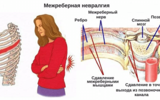 Межреберная невралгия – что это такое, симптомы и лечение в домашних условиях