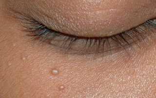 Жировики на лице: причины появления, как убрать белые липомы дома