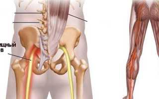 Седалищный нерв – признаки и причины заболеваний, диагностика, терапия и последствия
