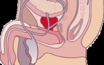 Острый простатит – симптомы и лечение приступа у мужчин в домашних условиях