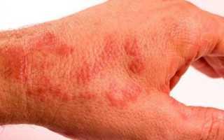 Красные точки на руках: причины и лечение сыпи