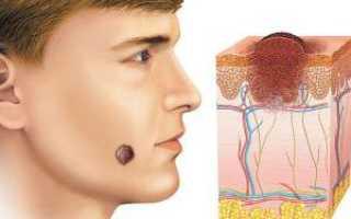 Пигментный невус – формы и как выглядит с фото, диагностика и виды, лечение и удаление