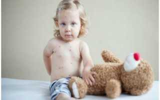Сыпь на теле у ребенка мелкая и красная: виды, причины и лечение