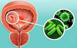 Цистит – симптомы у женщин, формы заболевания