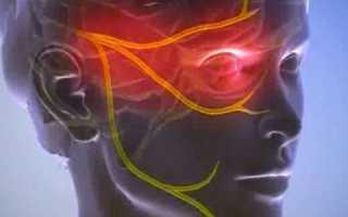 Воспаление тройничного нерва – симптоматика, лекарственная терапия и народные средства
