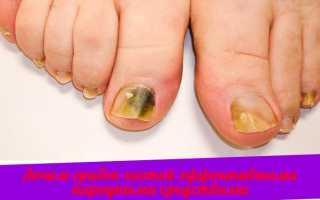 Самые быстрые способы лечения грибка ногтей – противогрибковые препараты и рецепты народной медицины