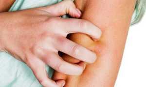Как начинается псориаз – первые признаки, появление бляшек, симптомы и причины
