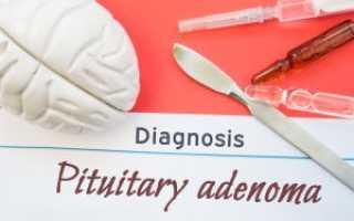 Аденома гипофиза – признаки и симптомы у взрослых и детей, диагностика и лечение