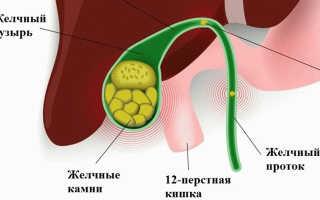 Желчнокаменная болезнь: симптомы, лечение и диета при камнях