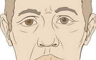 Лицевой нерв – что это такое, что делать при его воспалении, причины и диагностика болезни