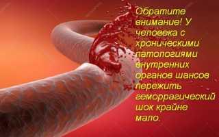 Геморрагический шок – причины и признаки, первая доврачебная помощь и диагностика, лечение