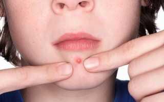 Фурункул на лице – симптомы: как лечить фурункулез народными средствами, лекарствами и физиотерапией, как избавиться от чирия хирургически